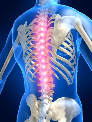Como librar de la curvatura de la columna vertebral