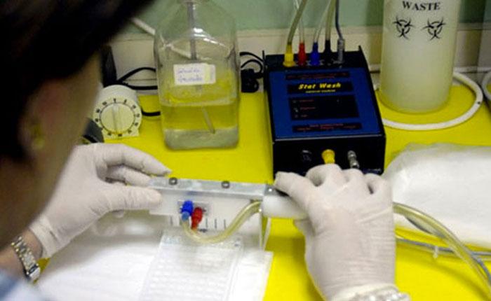 Malaria en Venezuela alcanzó récord histórico en 2015