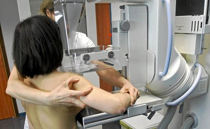 Disminuyó la edad recomendada para el examen de cáncer de mama