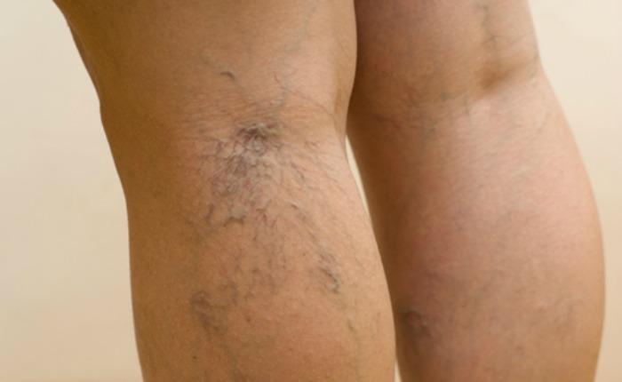 Estas medidas de cuidado pueden servir para achicar las venas varicosas