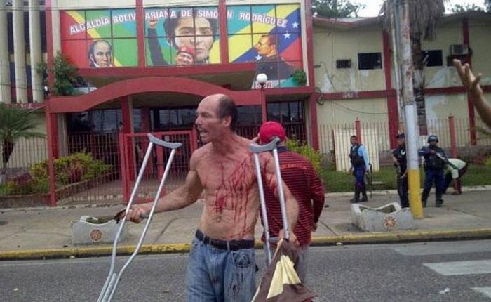 Con disparos y lacrimógenas GNB reprimió protesta por falta de alimentos en El Tigre