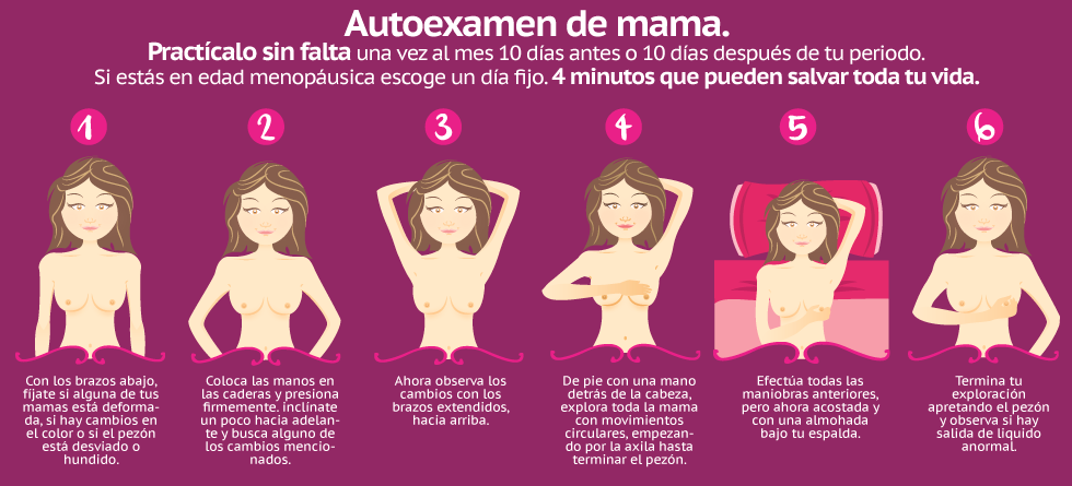 Quimioterapia para la recurrencia mamaria temprana
