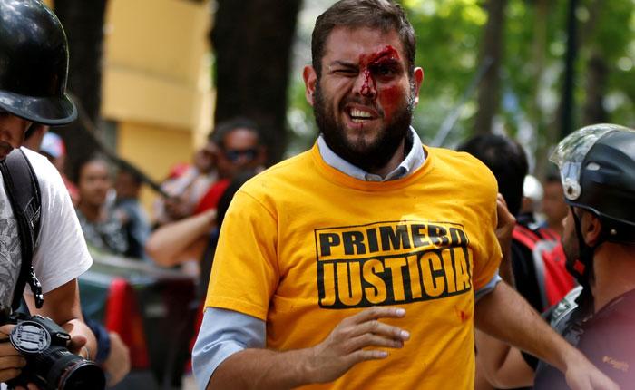 Ministerio Público comisionó al fiscal para investigar lesiones a diputados Juan Requesens y José Brito