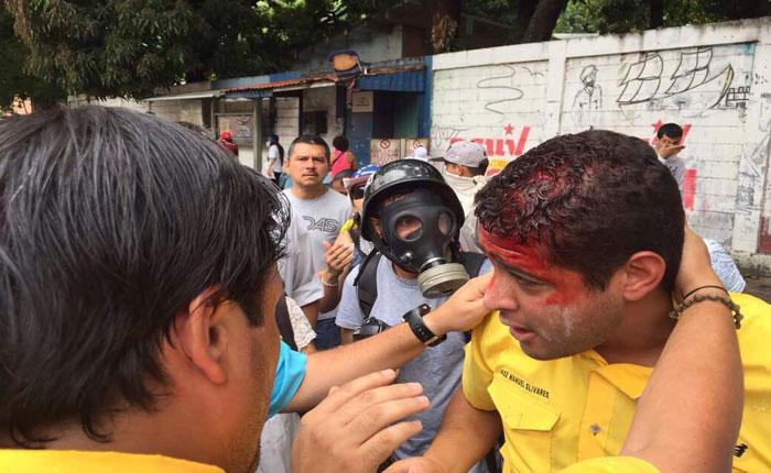 Diputado José Manuel Olivares fue herido con lacrimógena en la cabeza