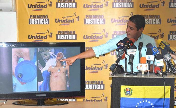 José Manuel Olivares: La GNB utiliza metras para asesinar a los venezolanos durante protestas