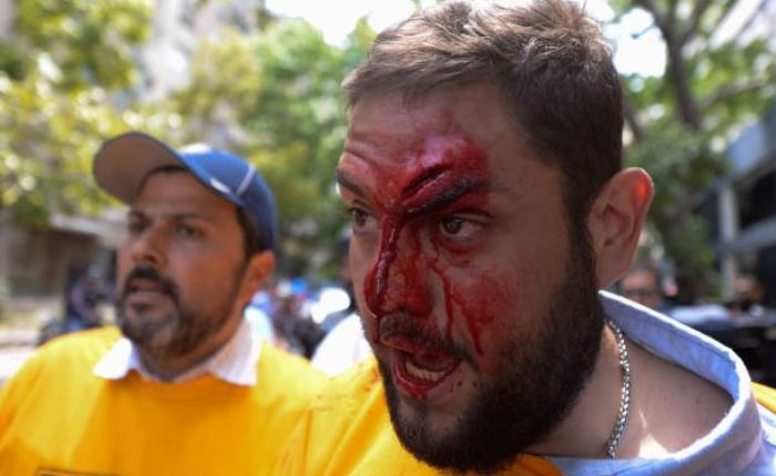 Requesens-GettyImages