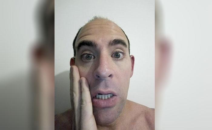 Me diagnosticaron un síndrome, por Reuben Morales